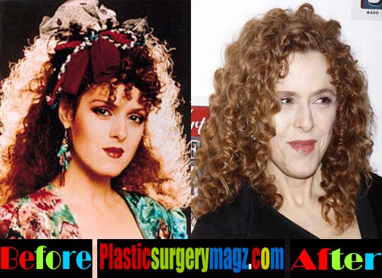 Bernadette Peters Facelift Before And After