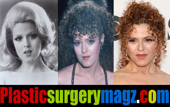 Bernadette Peters Ageless Appearance