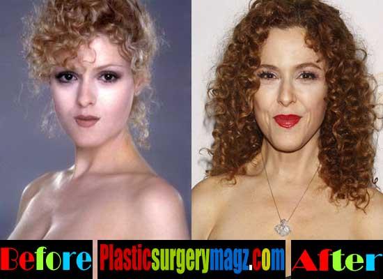 Bernadette Peters Plastic Surgery Botox