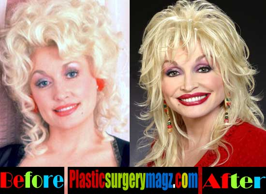 Dolly Parton Facelift Before and After