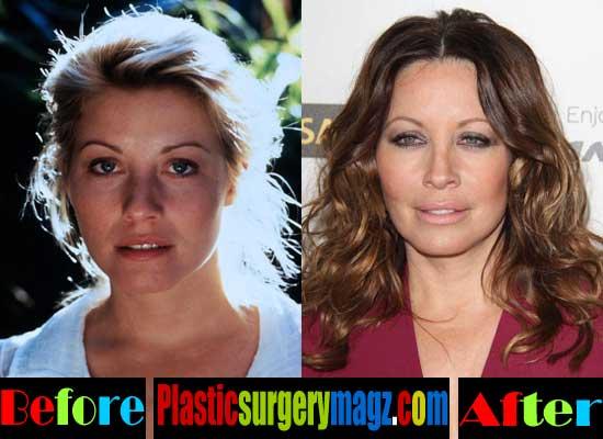 Linda Kozlowski Rhinoplasty Before and After