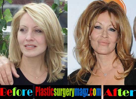 Linda Kozlowski Plastic Surgery Face