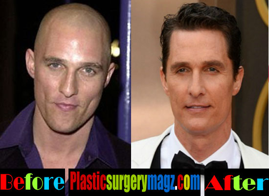 Matthew Mcconaughey Hair Transplantation
