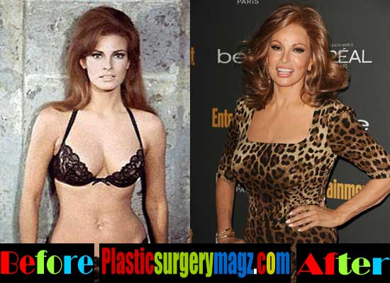 Raquel Welch Breast Implant Before and After