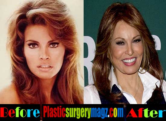 Raquel Welch Nose Job Before and After