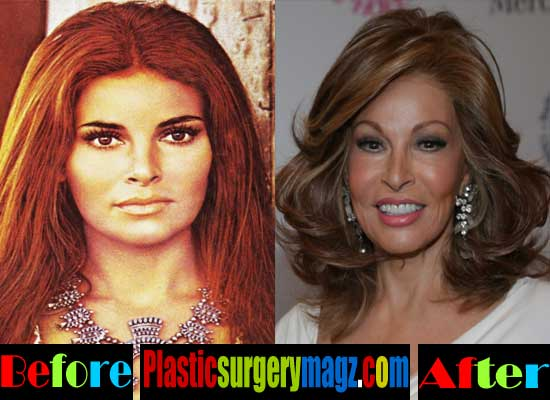 Raquel Welch Plastic Surgery Facelift