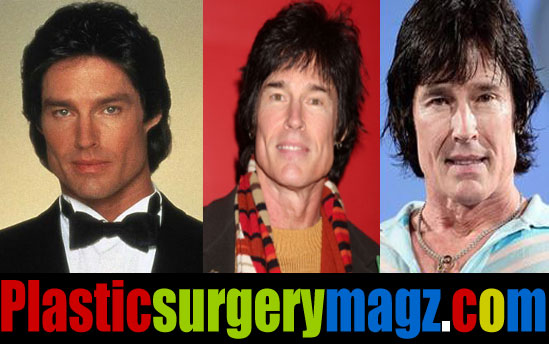 Ronn Moss Before and After Plastic Surgery