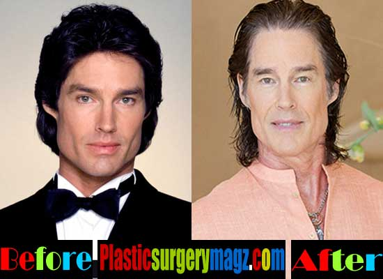 Ronn Moss Botox Injection