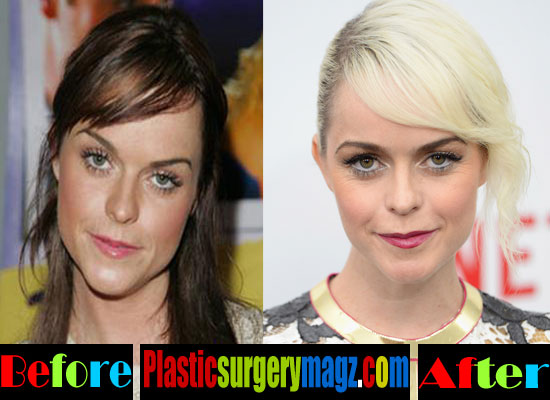 Taryn Manning Plastic Surgery Before and After | Plastic ...