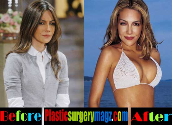 Vanessa Marcil Breasr Implants Before and After