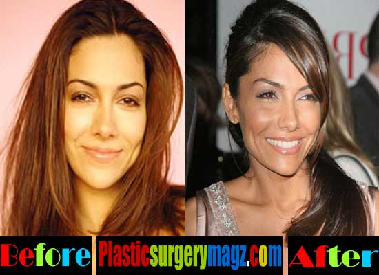 Vanessa Marcil Nose Job Before and After