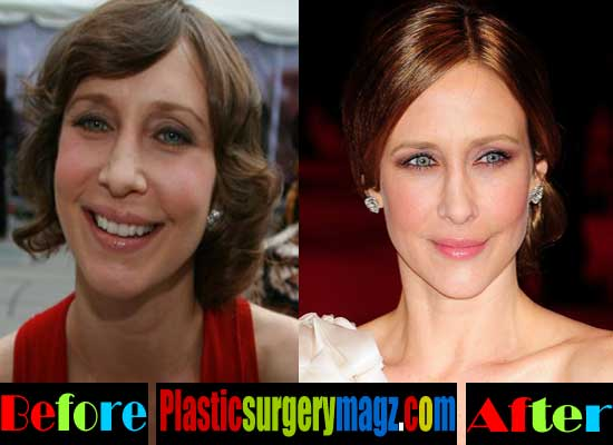 Vera Farmiga Nose Job Before and After