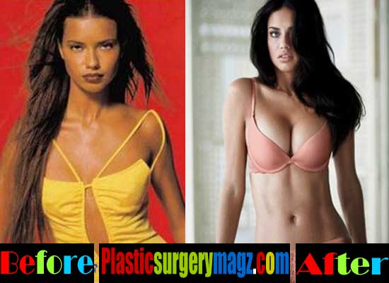 Adriana Lima Breast Implant