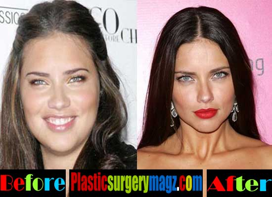 Adriana Lima Nose Job Before and After