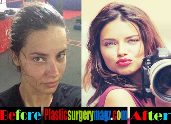 Adriana Lima Plastic Surgery Before And After