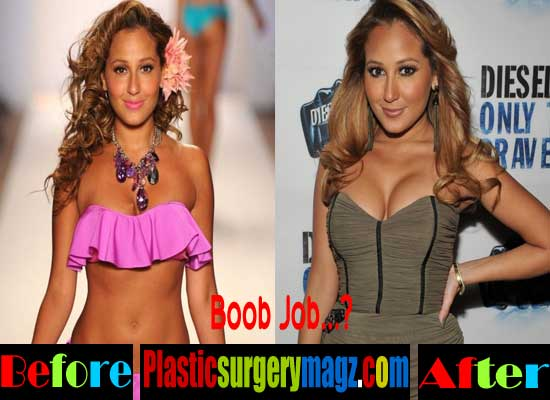 Adrienne Bailon Breast Implants Before and After
