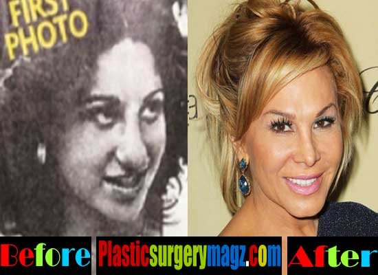 Adrienne Maloof Nose Job Before and After