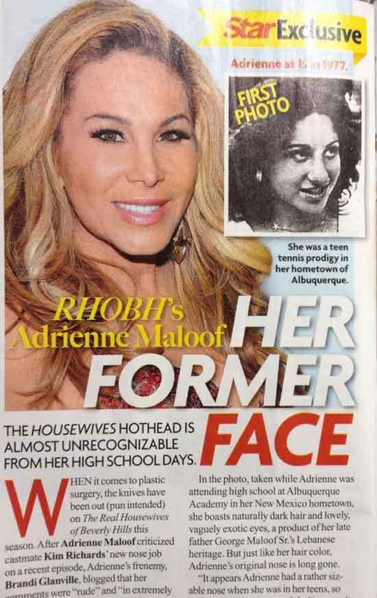 Adrienne Maloof Plastic Surgery Procedure