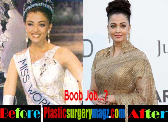 Aishwarya Rai Breast Implants Before and After