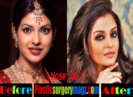 Aishwarya Rai Nose Job Before and After
