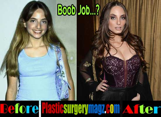 Alexa Ray Joel Breast Implants Before After
