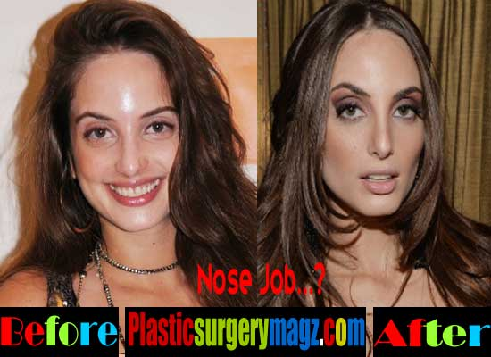 Alexa Ray Joel Nose Job Before After