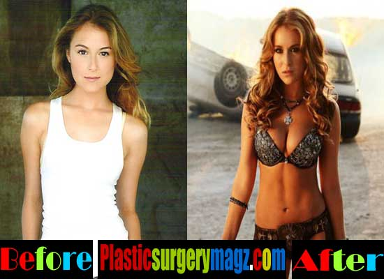 Alexa Vega Breast Implants Before and After