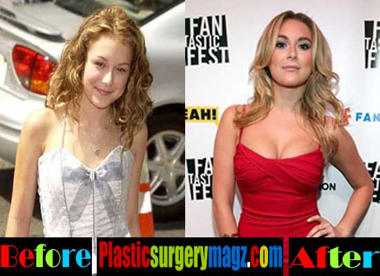 Alexa Vega Plastic Surgery Before and After