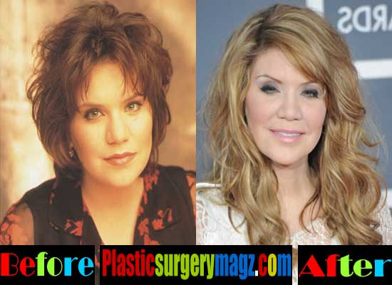 Alison Krauss Before and After Plastic Surgery