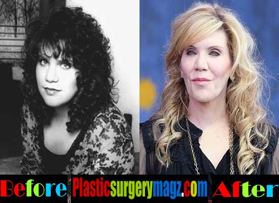 Alison Krauss Before and After
