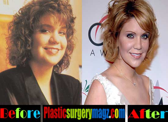 Alison Krauss Plastic Surgery Before and After