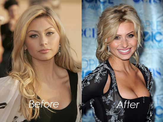 Aly Michalka Boob Job Before and After