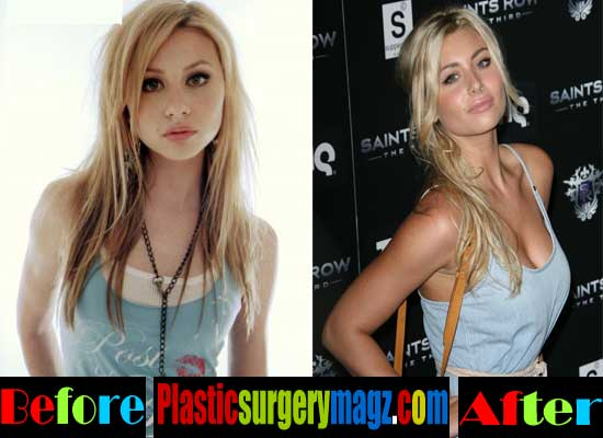 Aly Michalka Breast Implants Before and After