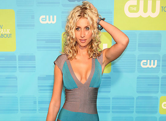 Aly Michalka Plastic Surgery