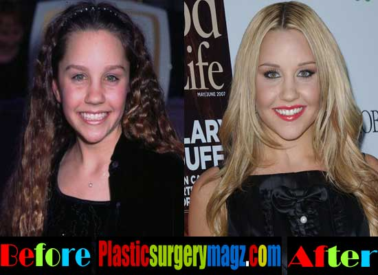 Amanda Bynes Nose Job Before and After