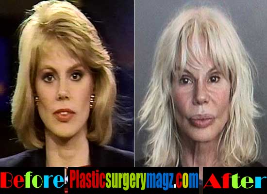 Bree Walker Plastic Surgery Gone Wrong Plastic Surgery