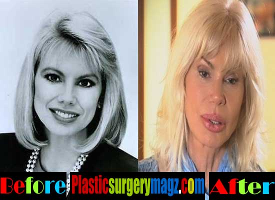 Bree Walker Plastic Surgery Gone Wrong