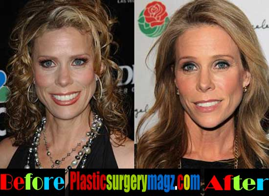 Cheryl Hines Before and After Plastic Surgery
