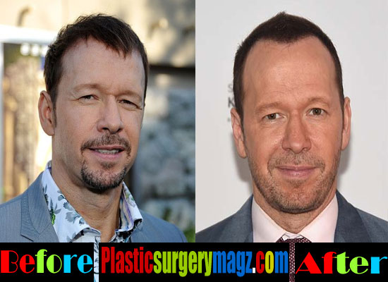 Donnie Wahlberg Before and After Plastic Surgery