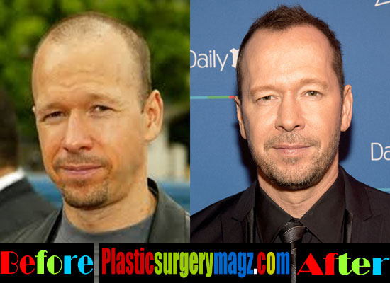 Donnie Wahlberg Plastic Surgery Before and After Pictures