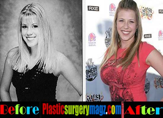 Jodie Sweetin Boob Job Before and After