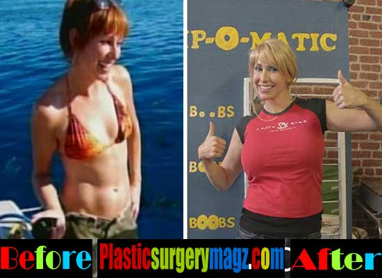 Kari Byron Breast Implants Before and After