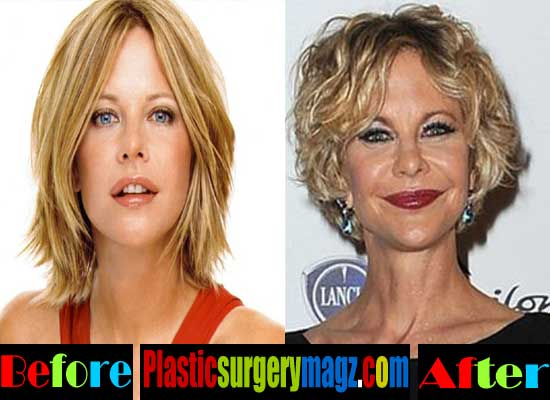Meg Ryan Plastic Surgery Before and After