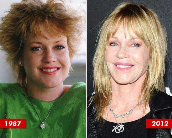 Melanie Griffith Before and After Photos