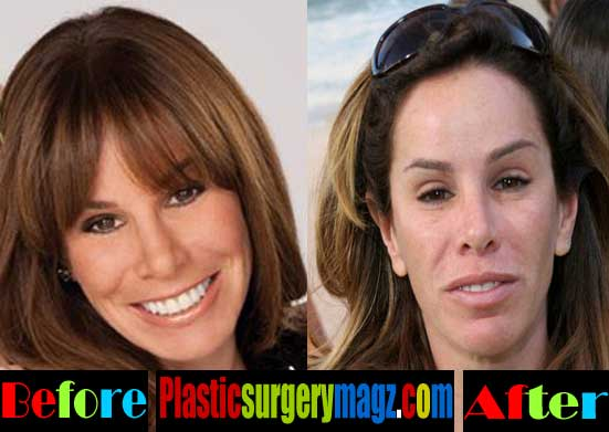 Melissa Rivers Nose Job Before And After