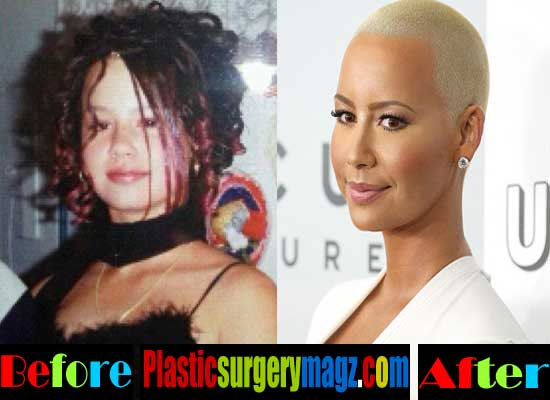 Amber Rose Plastic Surgery Before And After Pictures Plastic