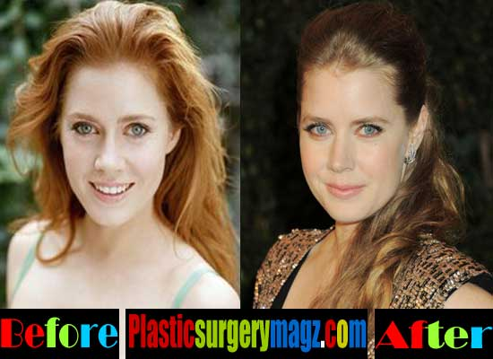 Amy Adams Nose Job Before and After