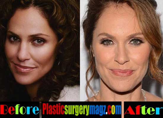 Amy Brenneman Botox Injection