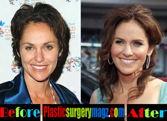 Amy Brenneman Beauty Surgery
