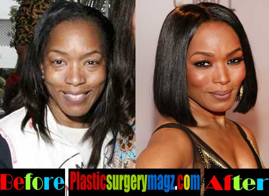 Angela Bassett Plastic Surgery Pictures